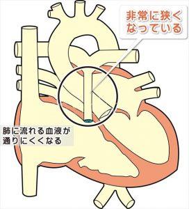 肺動脈狭窄